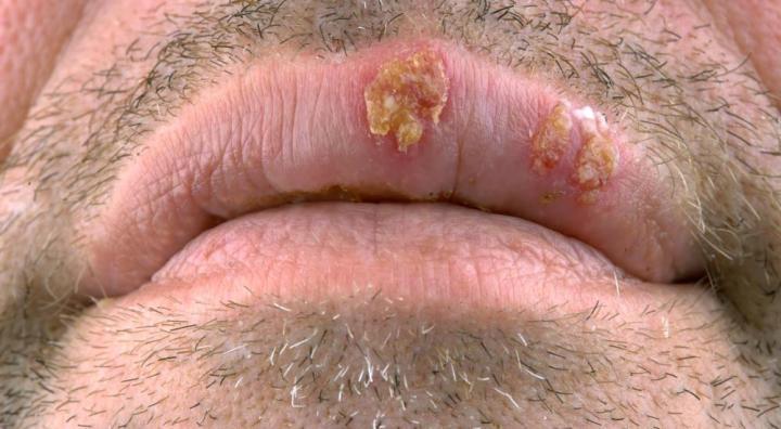 Herpes? STDs? Swollen Urethra? 2