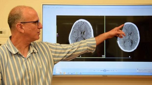 """Доктор Нево Маргалит показывает на снимке удаленную часть черепа. Фото: пресс-служба """"Шаарей-цедек"""""""