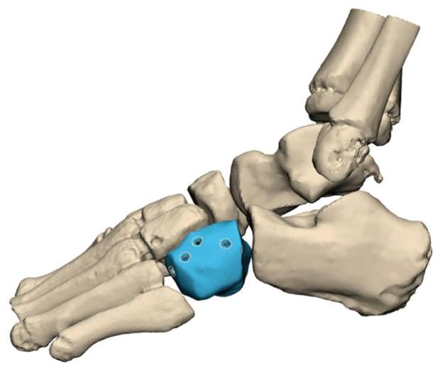 """Имплантация протеза предотвратила ампутацию стопы. Фото: пресс-служба больницы """"Ихилов"""""""