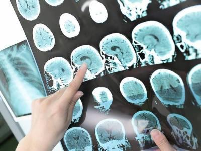 «Niente di cui preoccuparsi»: quei minimi indizi di tumore al cervello