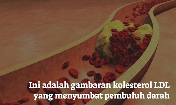 Obat Kolesterol Di Apotik