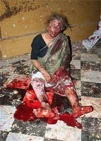 Terror attack victim