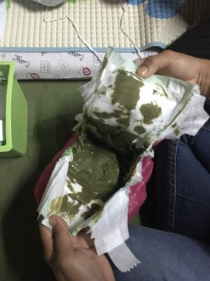 Susu Formula Najis Bayi Warna Hijau Kekuningan