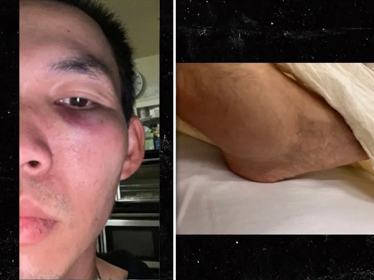 WATCH: UPS DRIVER ATTACKED ON SAN FRAN STREET … Attacker Gets Instant Karma!!!