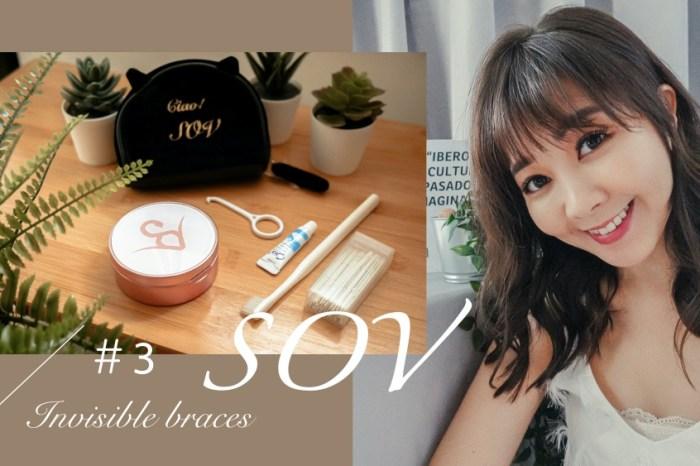 牙套日記#3 隱形牙套清潔重點/居家牙齒美白/0~6個月牙齒紀錄 @台灣矯正品牌SOV舒服美
