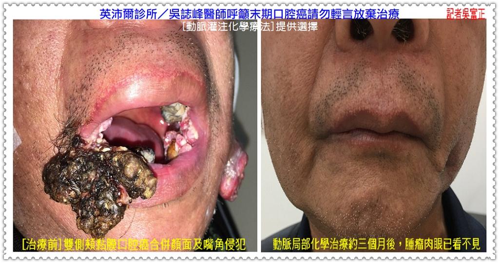 20200601c-英沛爾診所/吳誌峰醫師呼籲末期口腔癌請勿輕言放棄治療02