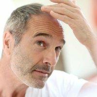 La perte de cheveux est-elle liée à l'âge?