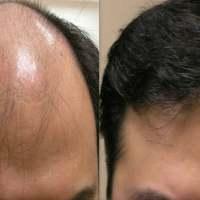 Herbes qui empêchent la perte de cheveux