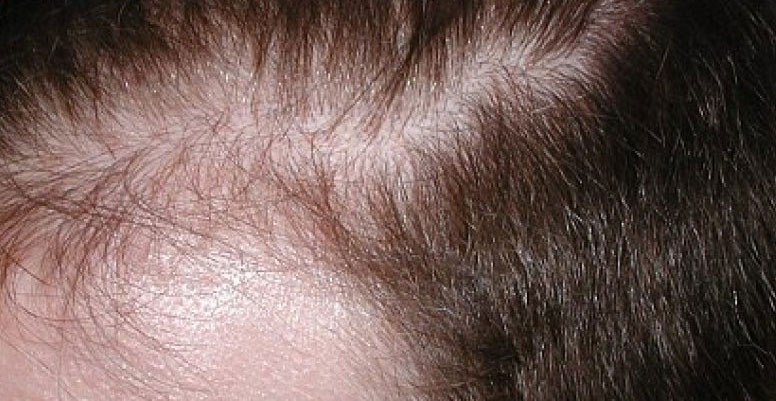 sågpalmetto håravfall kvinnor