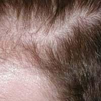 Přírodní prostředky pro vypadávání vlasů