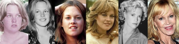 transformation-of-38-celebs-from-their-childhood-to-the-present-day-28
