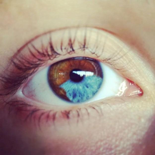 Beautiful Mutations 15 Staggering Photos of Heterochromia12