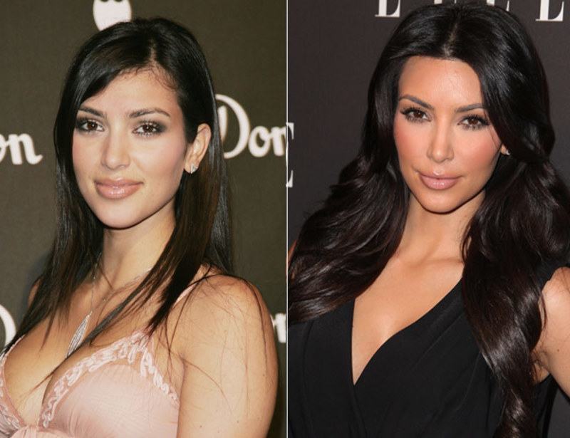 celebs_who_should_probably_stop_denying_plastic_surgery_rumors_07