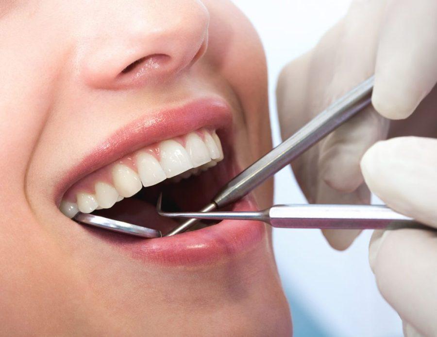 Dental checkup | 8 Self-Checks Every Woman Should Do | Her Beauty