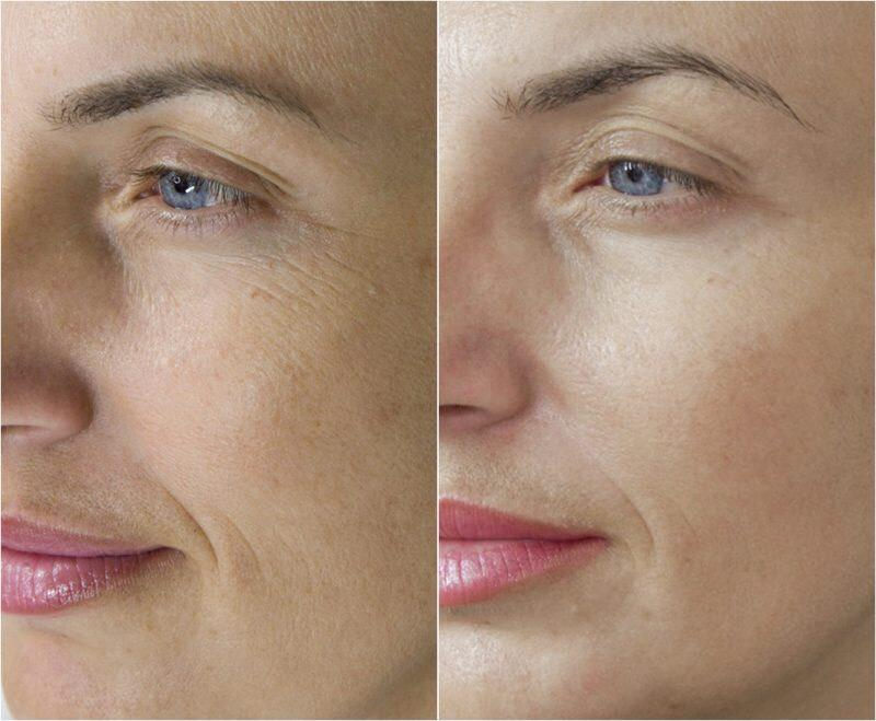 Microneedling before and after | Everything There Is To Know About Microneedling | Her Beauty
