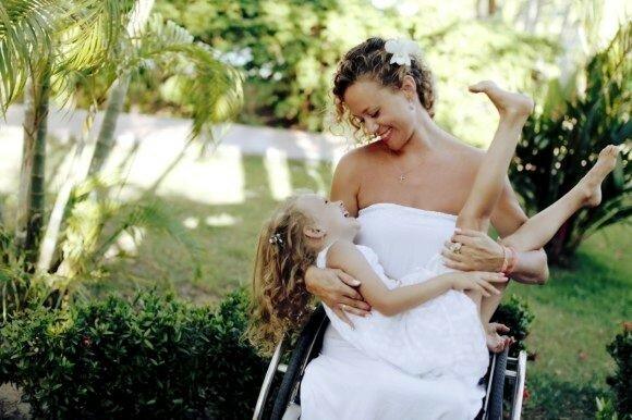 Смелые и красивые: 10 успешных моделей инвалидов, которые превратили недостатки в достоинство
