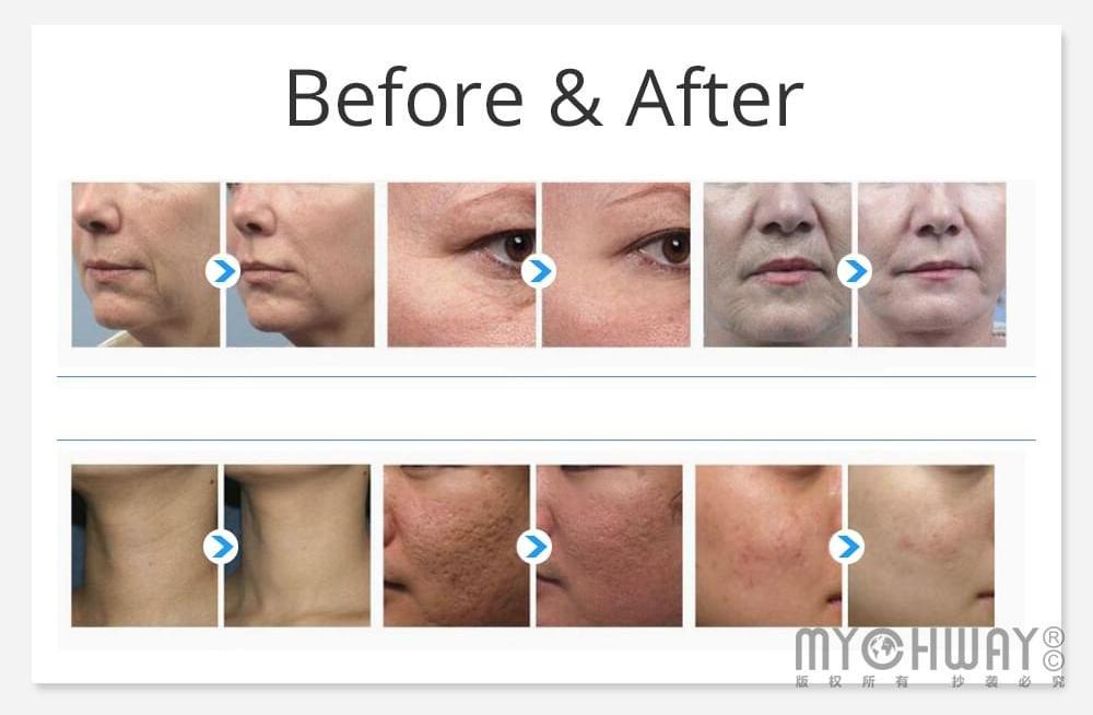 derma microneedle skin roller