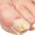 Грибок ногтей. Лечение Icon