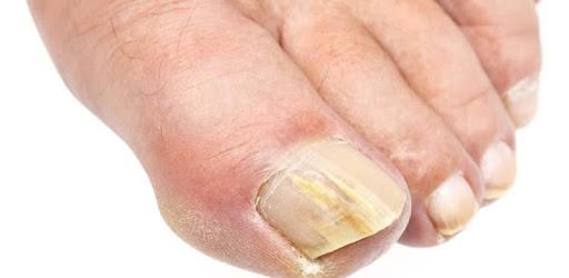Грибок ногтей. Лечение apk