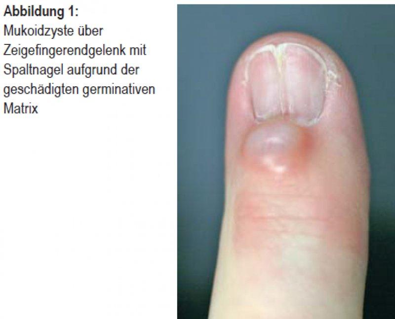 therapie der primaren finger und