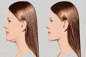 Double Chin Exercises - Get Rid Of Double Chin 1.5 Screen 6