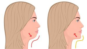 Double Chin Exercises - Get Rid Of Double Chin 1.5 Screen 8