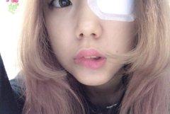 ある意味コスプレともいえる眼帯をした女の子の画像