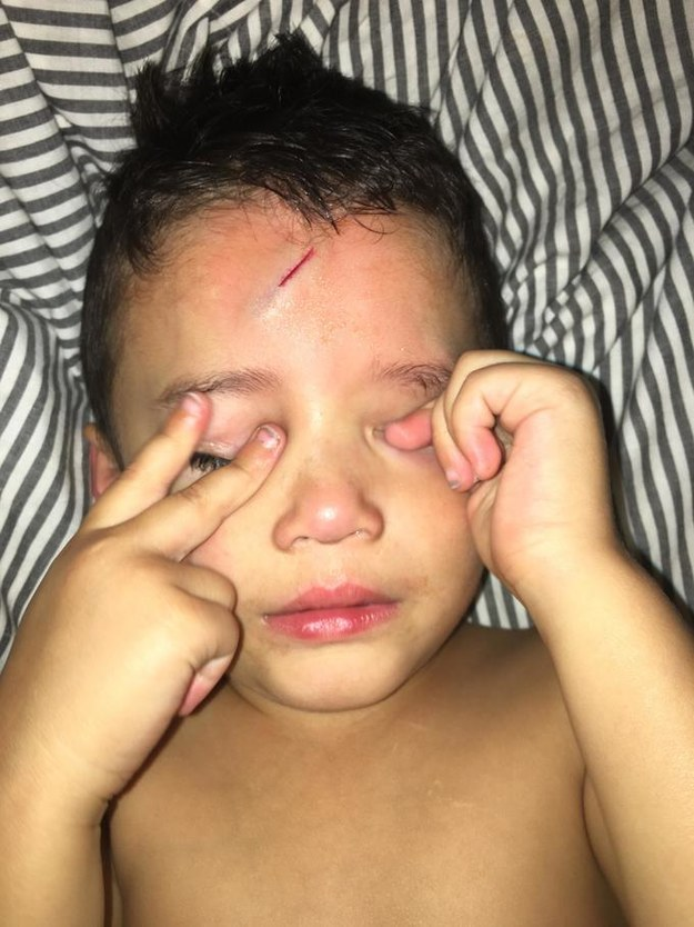 Ayden had an unfortunate fall last Tuesday night. He jumped on a pile of laundry and cut his forehead on the side of the bed frame.