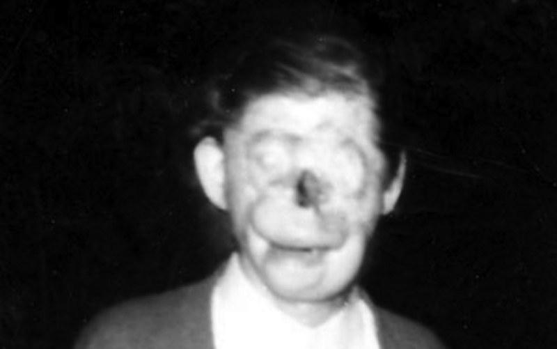 Charlie No-Face