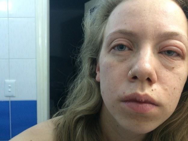 Dieses Mädchen, das möglicherweise allergisch auf Kuba ist: