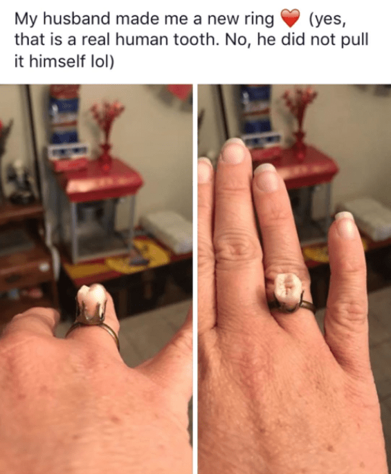 And finally, this stunning ring, because nothing says romance like A HUMAN TOOTH.