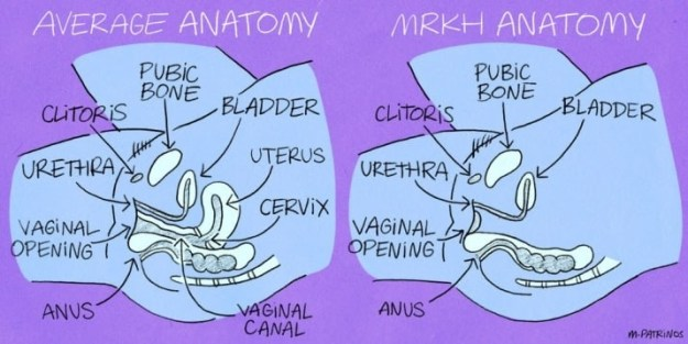 Abnormal anatomy.