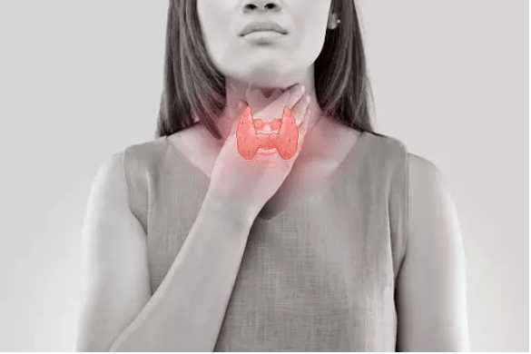 Graves' affects the thyroid, a butterfly-shaped gland in the front of the neck.