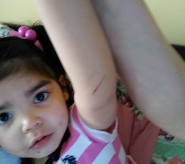Salgado also noticed that Lilayiah's arm had been scratched.