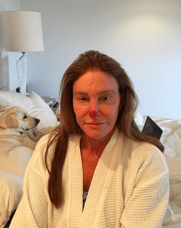 Well on Tuesday, Caitlyn took to Instagram to share a photo of her nose, which had suffered sun damage.