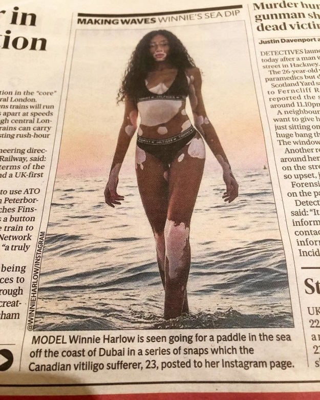 """After seeing London newspaper The Evening Standard refer to her as a """"Canadian vitiligo sufferer,"""" Harlow took to Instagram to make it clear she has no time for publications that victimize her writing, """"I'm not a 'Vitiligo Sufferer'. I'm not a 'Vitiligo model'. I am Winnie. I am a model. And i happen to have Vitiligo."""""""