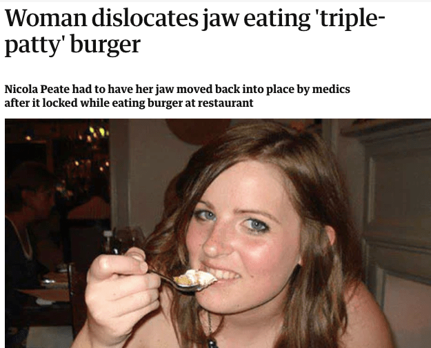 A woman who dislocated her jaw on a triple-patty hamburger: