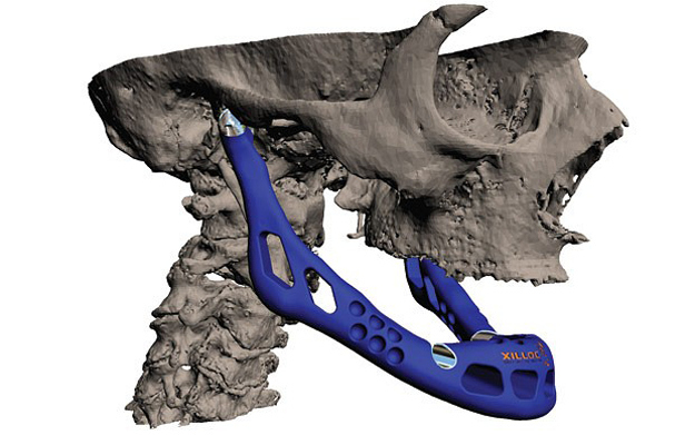 A custom working jawbone was created for an 83-year-old patient using titanium powder and bioceramic coating. The first of its kind, the successful surgery opens the door for individualized bone replacement and, perhaps one day, the ability to print out new muscles and organs.