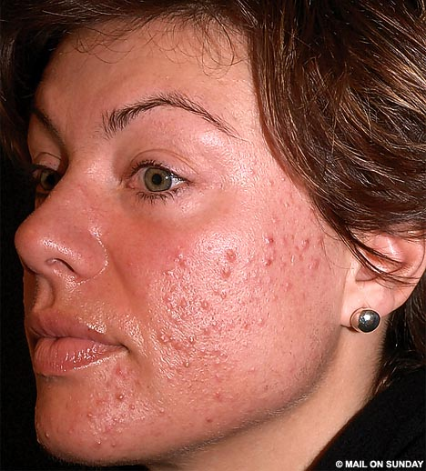 Image Result For Where To Buy Tea Tree Oil For Acne