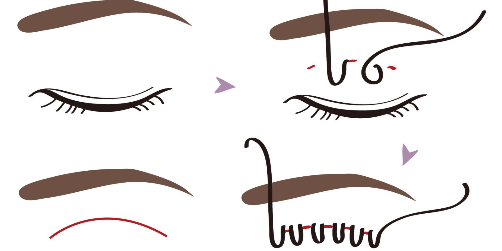 埋線雙眼皮有何優、缺點?適應症、禁忌症分別是什麼呢?