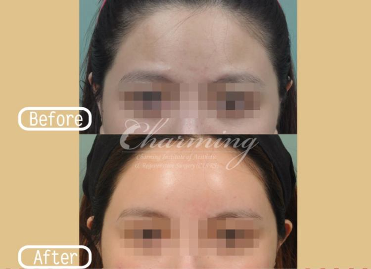 韓式隆額:打造臉部S型線條的第一步!(自體脂肪豐額頭)