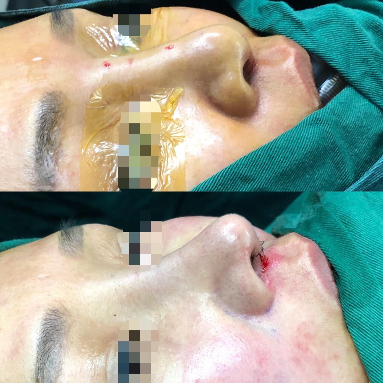 結構式隆鼻修復手術,搶救攣縮鼻大作戰!