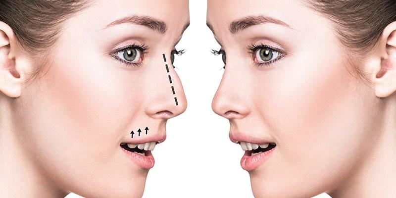 讓您簡單區分手術隆鼻與非手術隆鼻