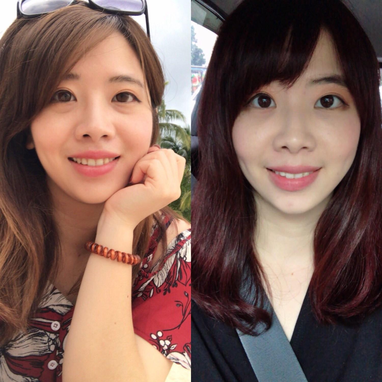 [PTT轉載]台南內開眼袋+淚溝和蘋果肌補脂(周杰醫師)