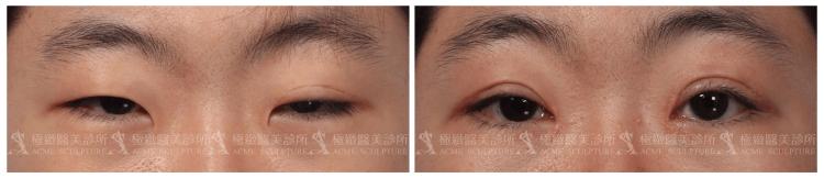 [滿意分享]提眼肌無力終極手段——復明皮瓣
