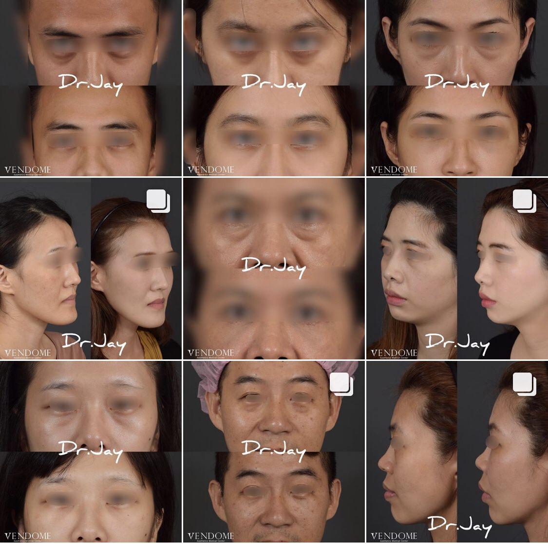 【持續更新!】眼袋手術+淚溝蘋果肌補脂真實案例