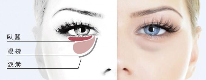 《周杰醫師's》眼袋、淚溝和臥蠶,傻傻分不清楚?