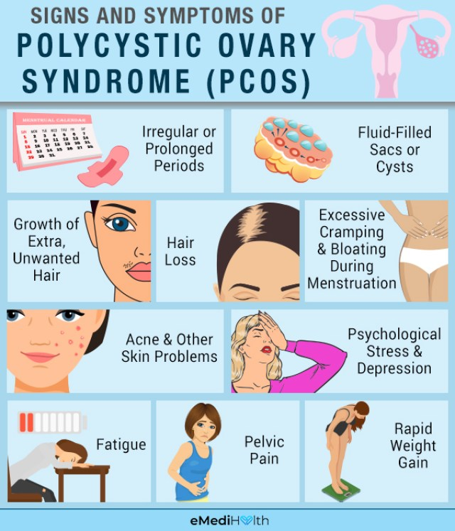 Understanding PCOS: Causes, Symptoms, and Treatment