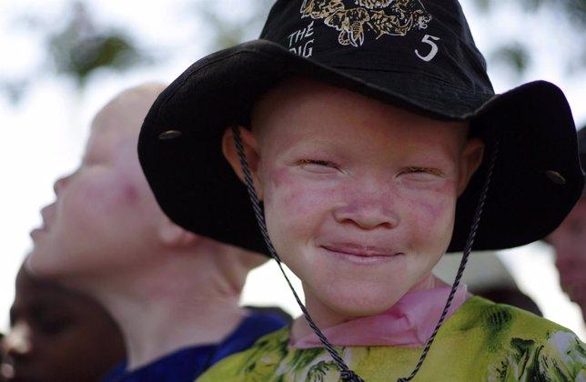 Niña albina en Tanzania