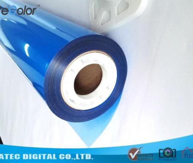 Blue Sensitive Medical Imaging Film  Micron Inkjet Medical X Ray Pet Film Images